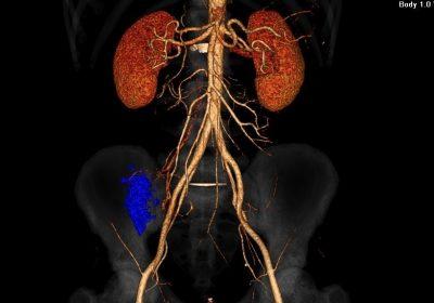 Рання діагностика хвороби  Крона у пацієнта з підозрою  на апендицит