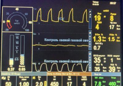 Хірурги Центрувиконалилапароскопічну розширенугеміколектомію 79-тирічному пацієнту з комбінованою вадою серця