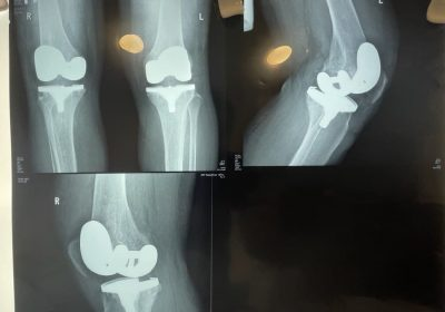 Ортопеди ЦІМТ проводять високотехнологічні одномоментні операції на двох суглобах