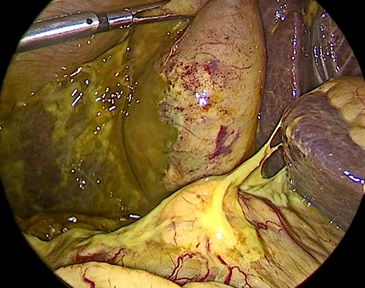 Хірурги ЦІМТ провели малоінвазивне втручання органів черевної порожнини пацієнту з трансплантацією серця